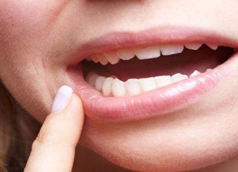Bruxismul- Scrâșnitul din dinți