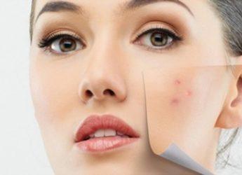 Cum luptăm cu acneea ?